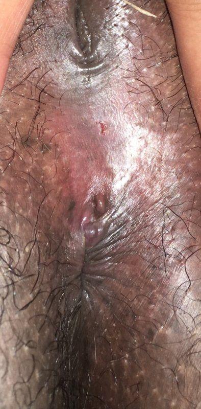 Genital herpes anus pictures
