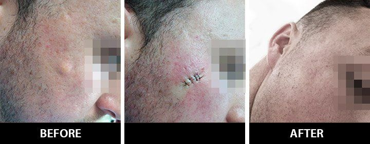 Astro reccomend Removal of facial cysts by one stitch punch biosopy