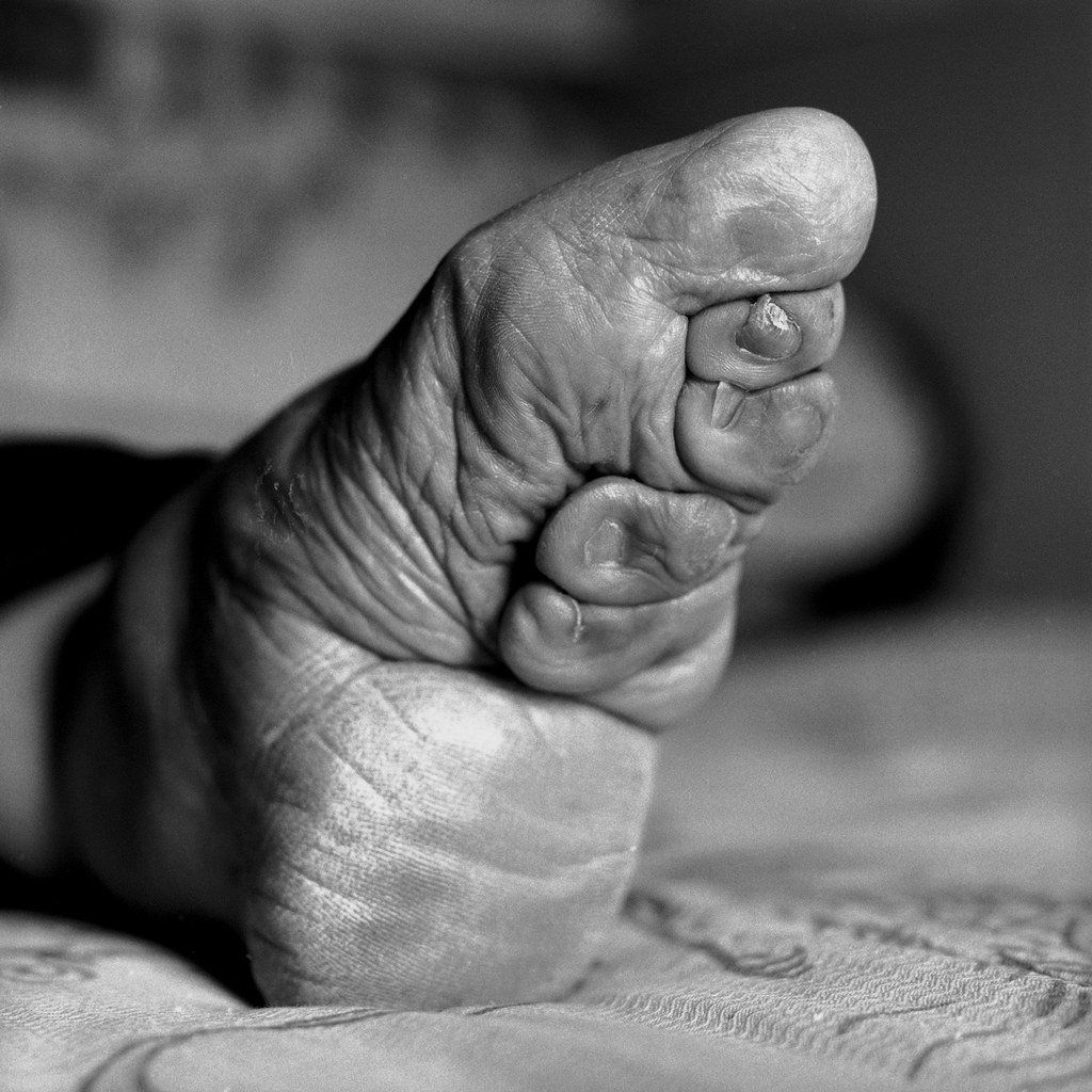 Asian binding foot . Pics and galleries.