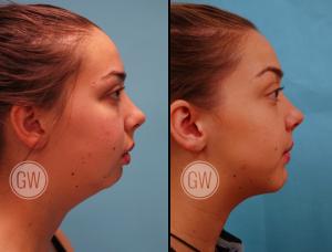 Sunburst reccomend Geneoplasty facial surgery / tempe, az