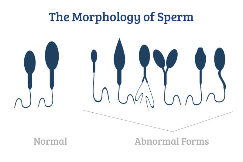 Minty reccomend Sperm abnormalities in older men