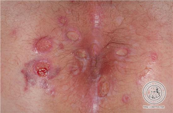 What do anal herpes look like
