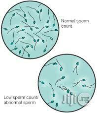 Count infertility low sperm