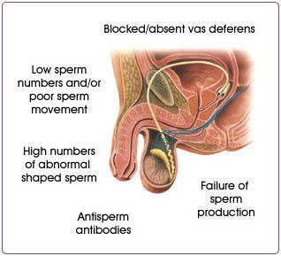 best of Sperm low Count infertility