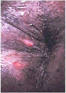 Juke reccomend Genital herpes anus pictures