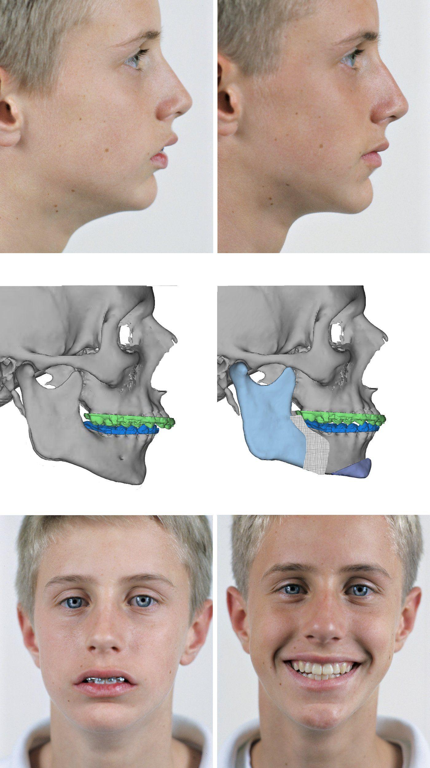 Omaha oral facial surgery