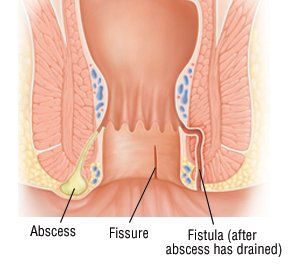 causes of anal discharge