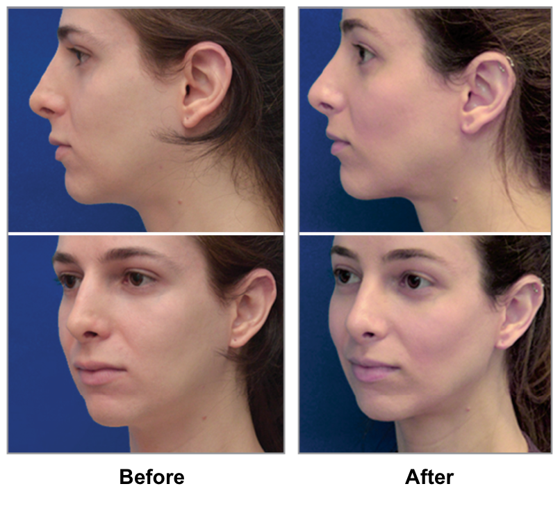 Nova reccomend Geneoplasty facial surgery / tempe, az