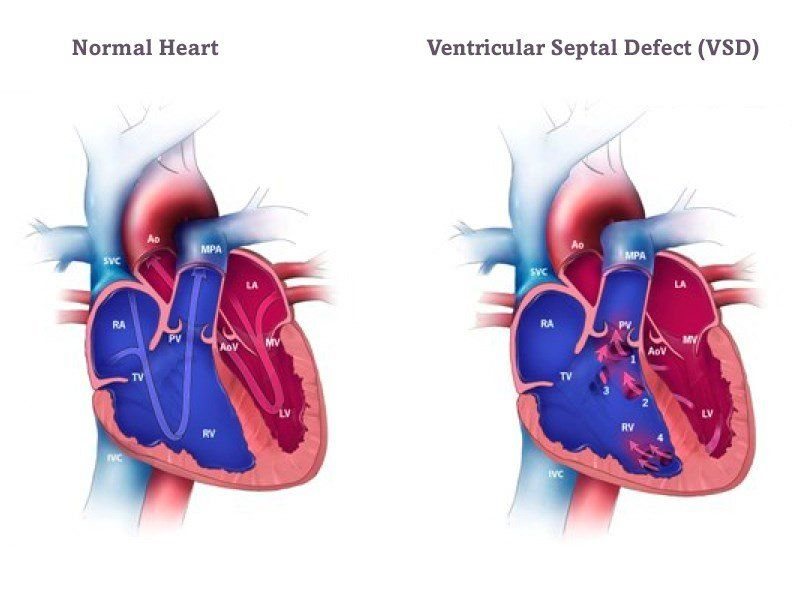 best of Adult not conjenital heart Hole in